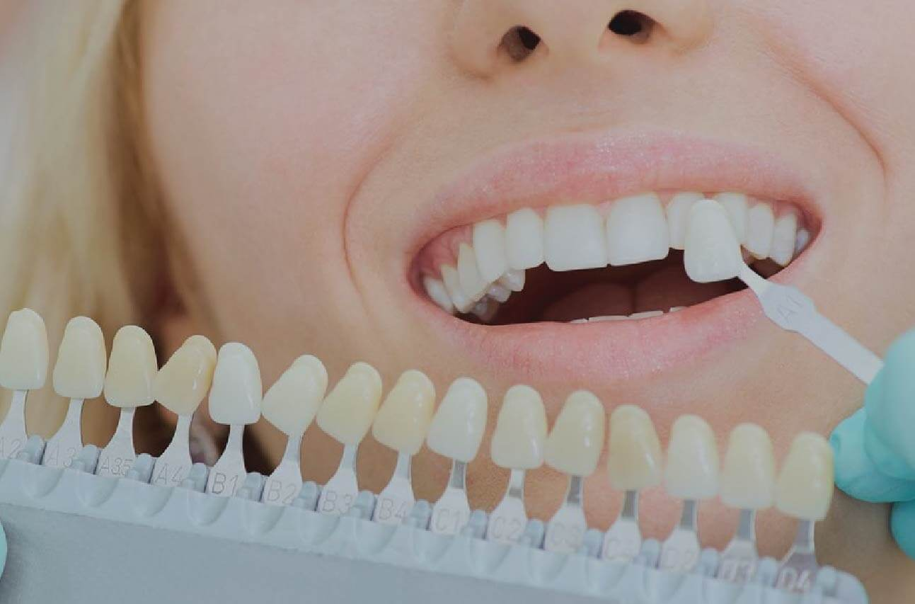 Destacadoh-odontologia-adhesivah-50-min